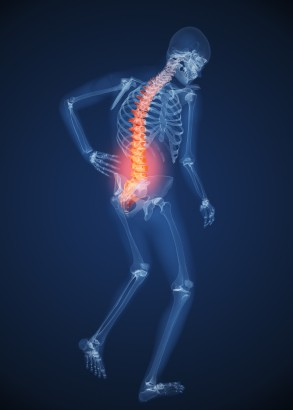 Could you be missing this common cause of backache?